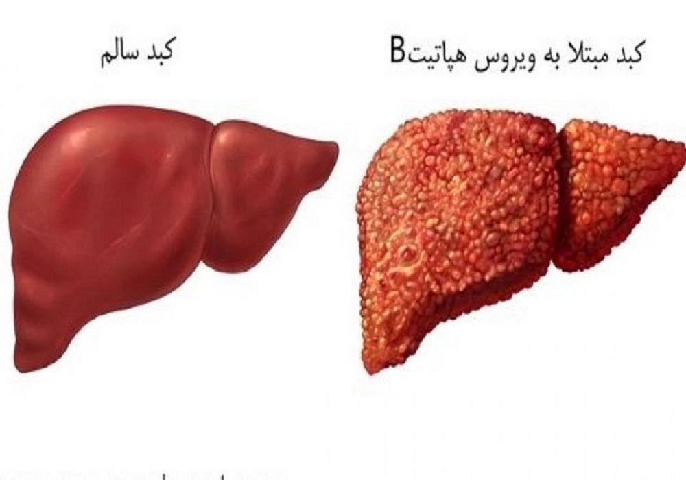 کبدسالم درمقایسه باکبدمبتلا به هپاتیت