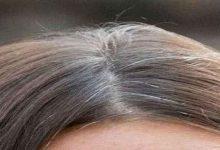 سفیدی مو وعلل ان