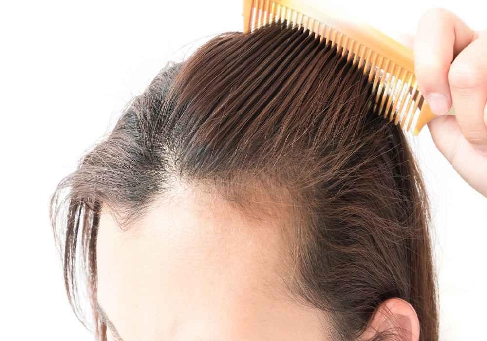 نیاسین موجود درسنگدان مرغ درجلوگیری از ریزش مو موثراست