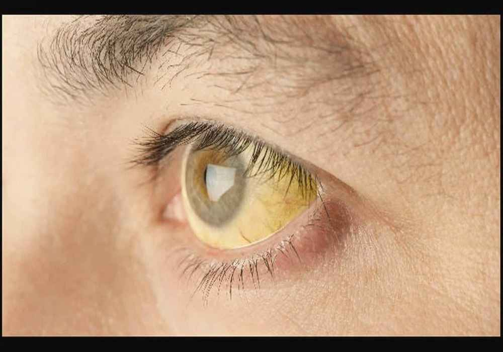 زردشدن چشم ها از علائم ابتلا به بیماری هپاتیت