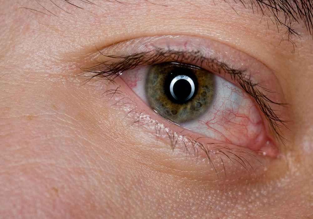 بیماری لوپوس باعث خشک شدن چشم ودهان می شود