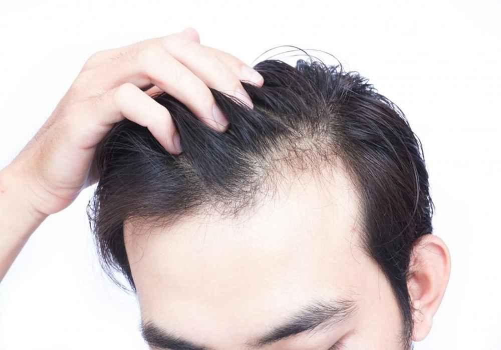 درمان ریزش مو با کمپلکس کافئین